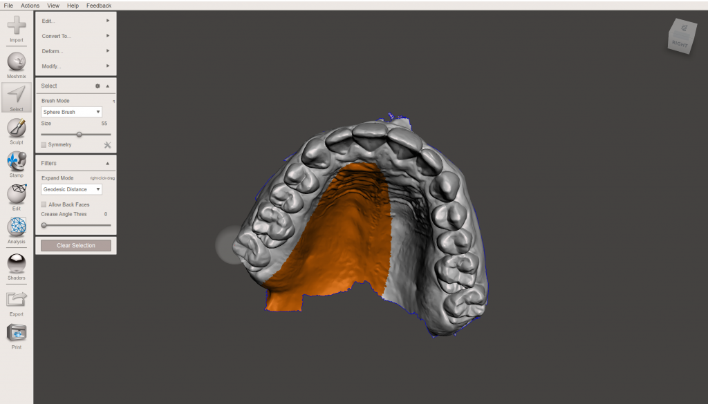 Meshmixer dental model edit