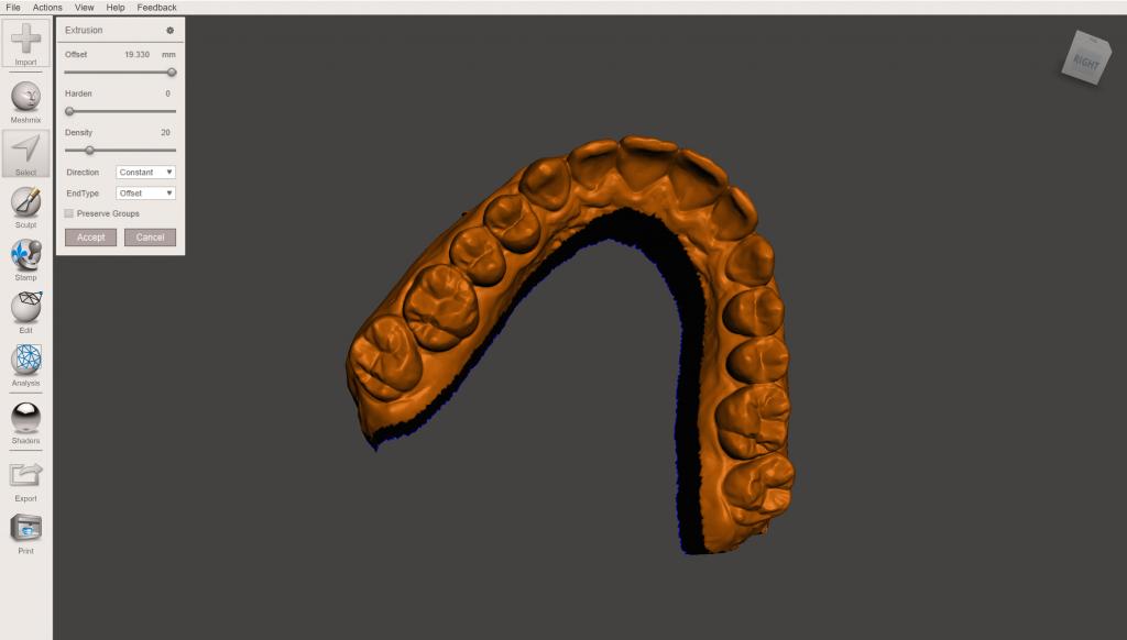 Meshmixer 3D dental model